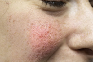 A macro view on the cheek of a young woman with severe erythema (visible blood vessels and capillaries), the most common symptom of rosacea.